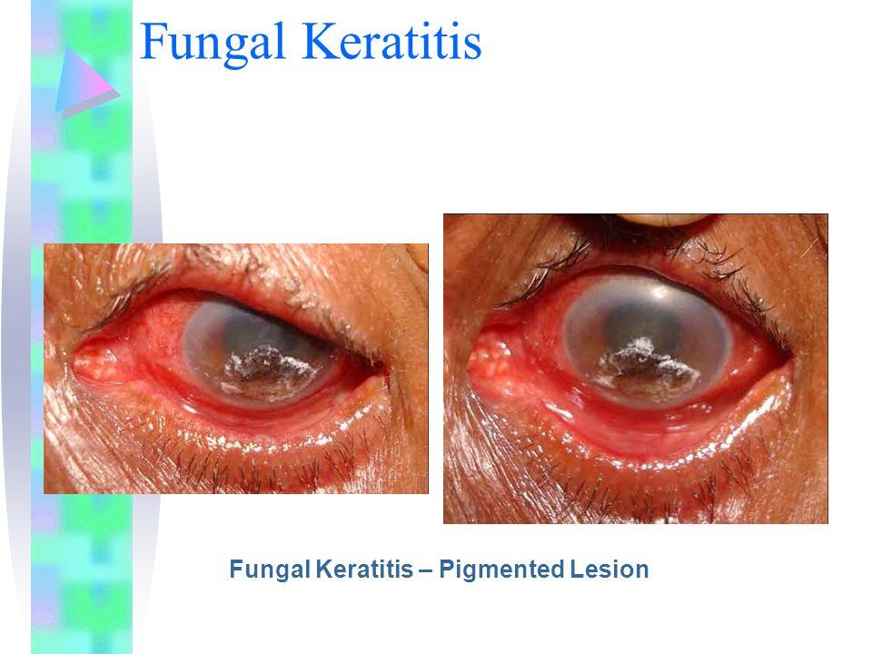 Fungal Keratitis Fungal Keratitis – Pigmented Lesion