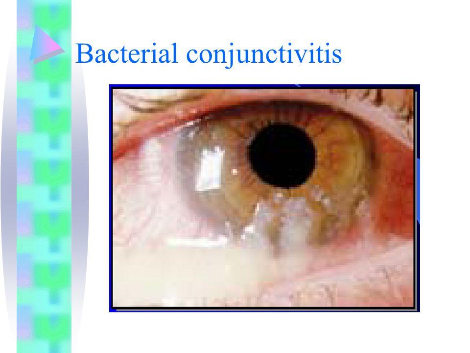SIGN Visus menurun ulcus central Infiltrat dengan lesi epitel di atasnya Ciliary infection Iridocyclitis keratitis precipitate (bentuk segitiga di epitel cornea), hypopion Pannus (pembuluh darah yang masuk ke cornea) DD MATA MERAH 1.conjunctivitis akut 2.Glaukoma akut 3.Keratitis 4.Uveitis