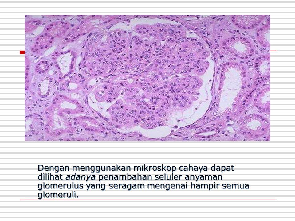 Dengan menggunakan mikroskop cahaya dapat dilihat adanya penambahan seluler anyaman glomerulus yang seragam mengenai hampir semua glomeruli.