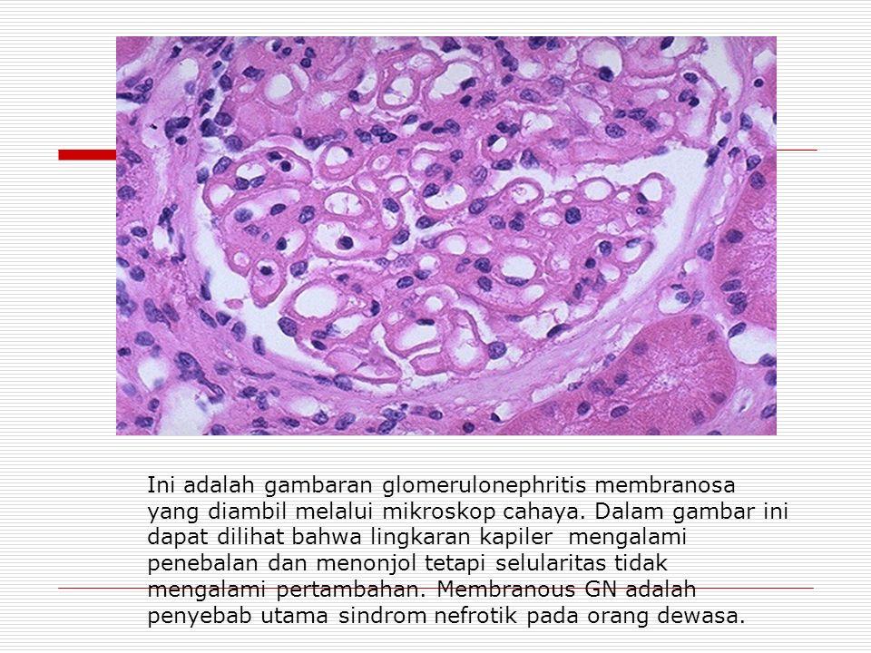 Ini adalah gambaran glomerulonephritis membranosa yang diambil melalui mikroskop cahaya.