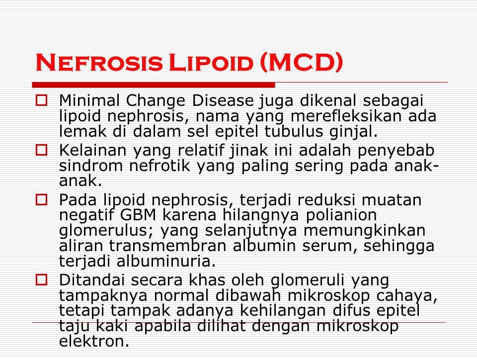 Nefrosis Lipoid (MCD)  Minimal Change Disease juga dikenal sebagai lipoid nephrosis, nama yang merefleksikan ada lemak di dalam sel epitel tubulus ginjal.