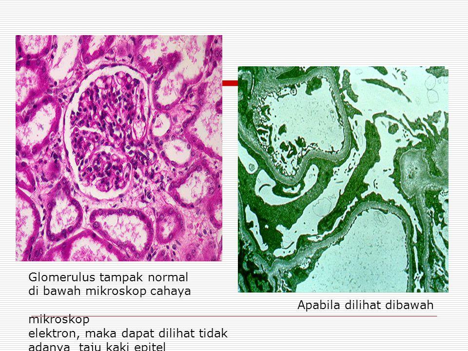 Glomerulus tampak normal di bawah mikroskop cahaya Apabila dilihat dibawah mikroskop elektron, maka dapat dilihat tidak adanya taju kaki epitel