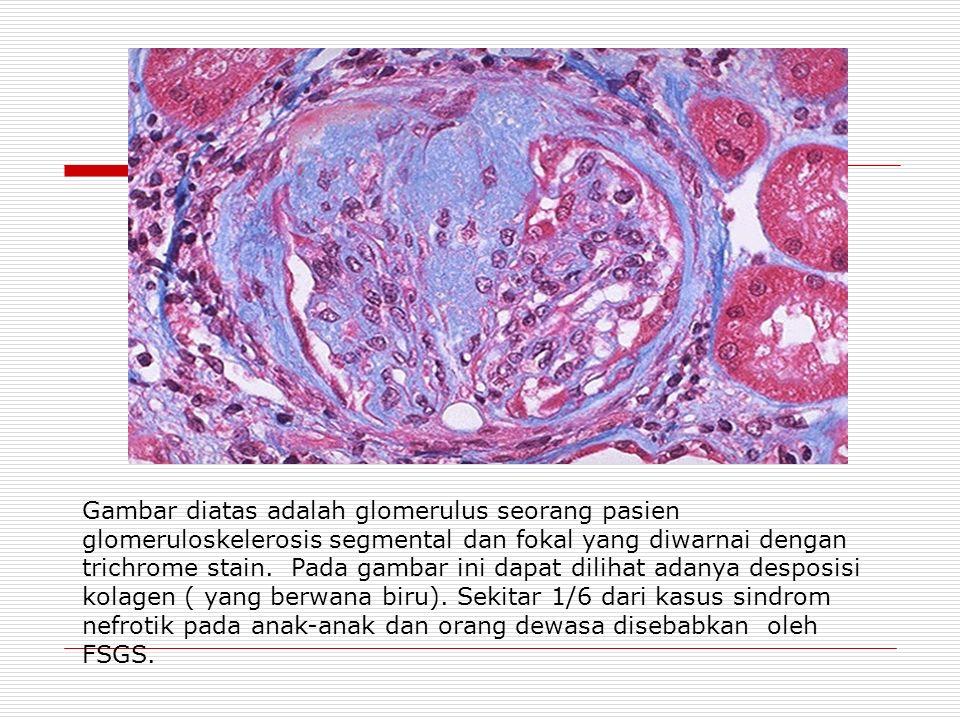 Gambar diatas adalah glomerulus seorang pasien glomeruloskelerosis segmental dan fokal yang diwarnai dengan trichrome stain.