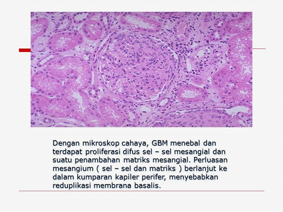 Dengan mikroskop cahaya, GBM menebal dan terdapat proliferasi difus sel – sel mesangial dan suatu penambahan matriks mesangial.