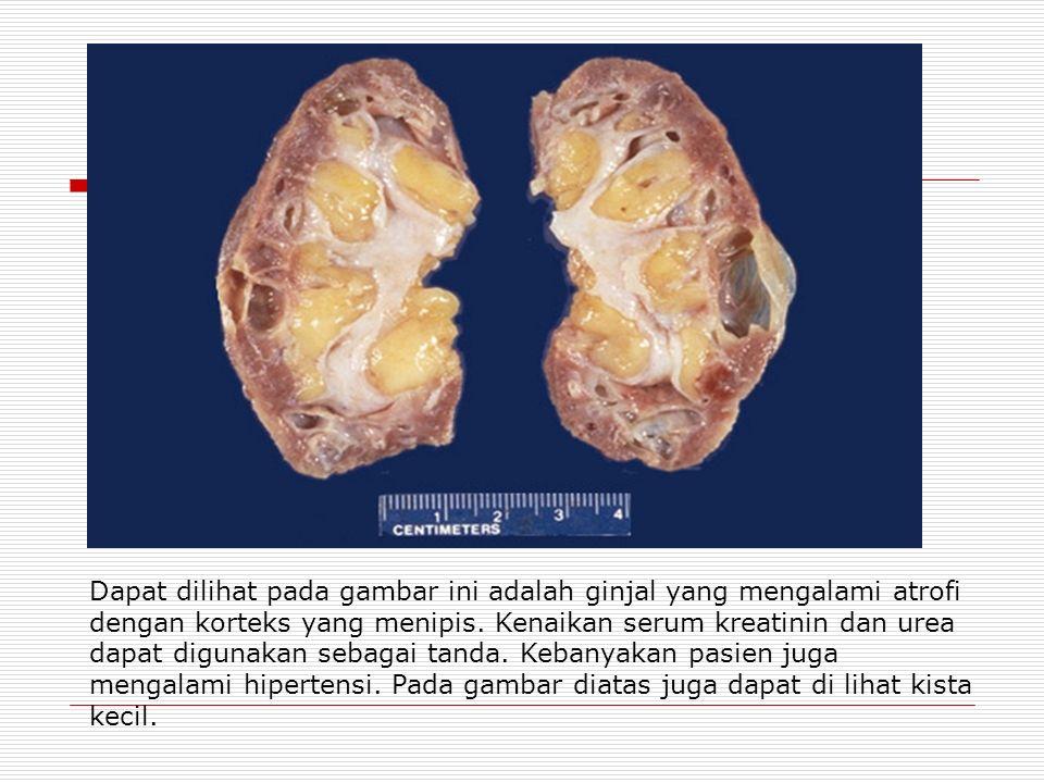 Dapat dilihat pada gambar ini adalah ginjal yang mengalami atrofi dengan korteks yang menipis.