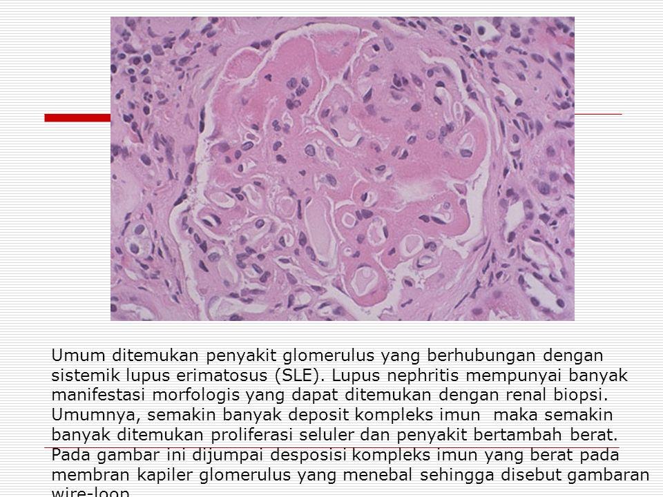 Umum ditemukan penyakit glomerulus yang berhubungan dengan sistemik lupus erimatosus (SLE).