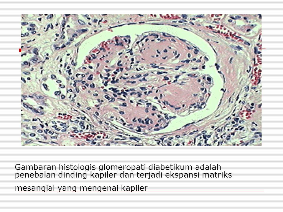 Gambaran histologis glomeropati diabetikum adalah penebalan dinding kapiler dan terjadi ekspansi matriks mesangial yang mengenai kapiler