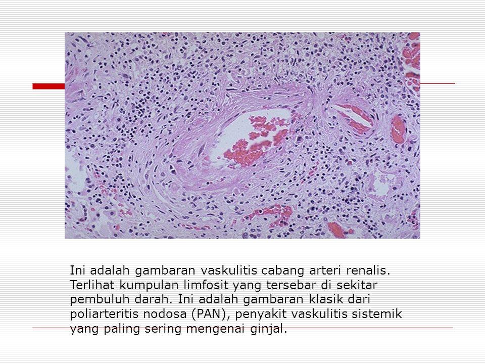 Ini adalah gambaran vaskulitis cabang arteri renalis.