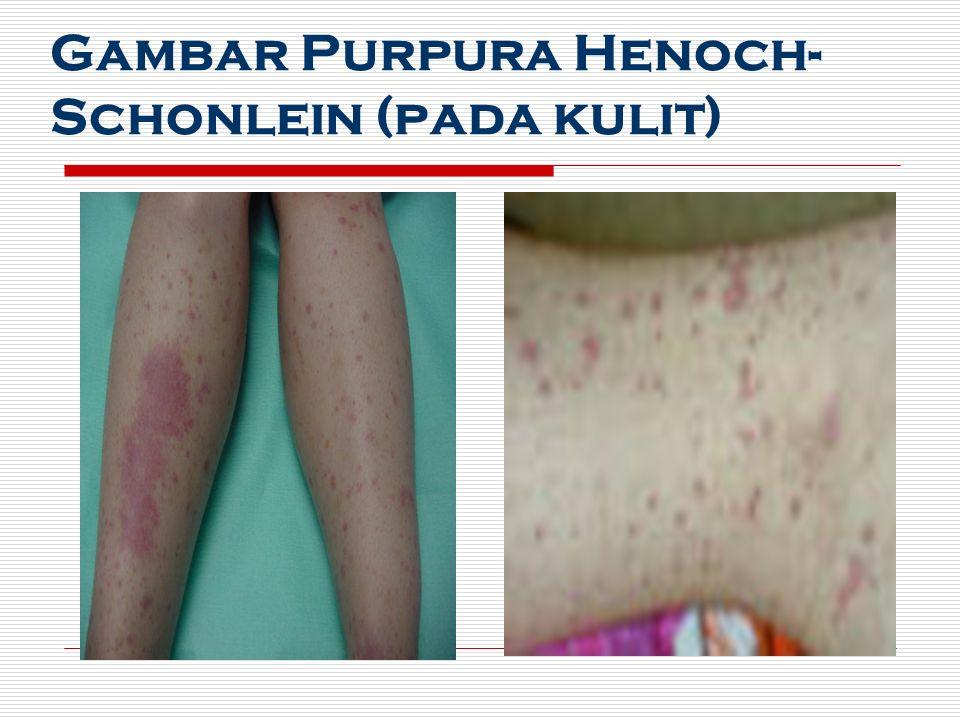 Gambar Purpura Henoch- Schonlein (pada kulit)
