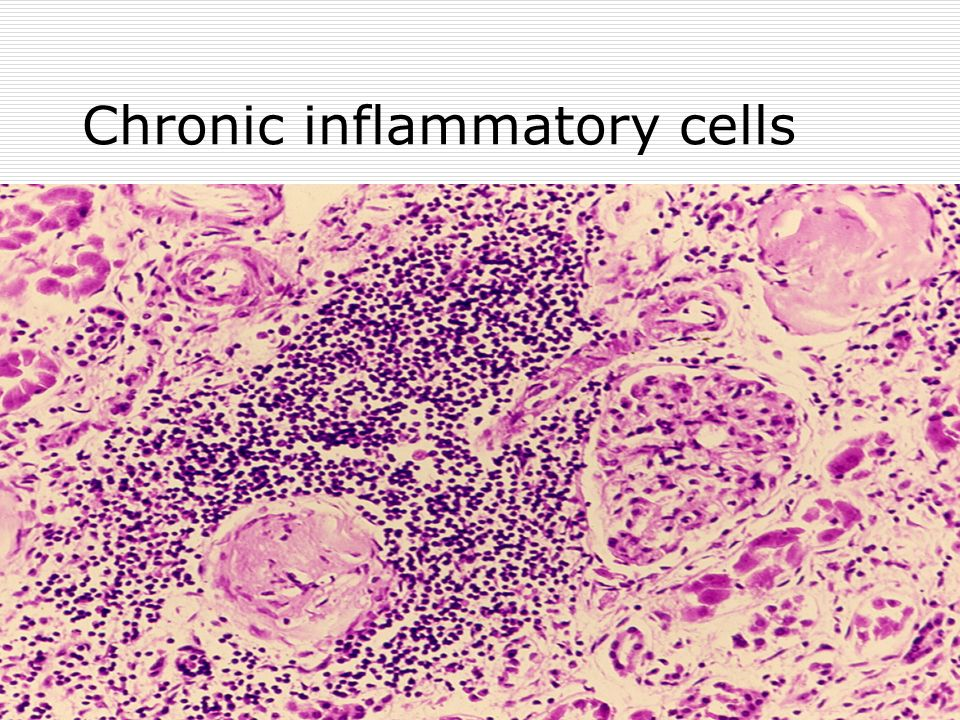 Chronic inflammatory cells
