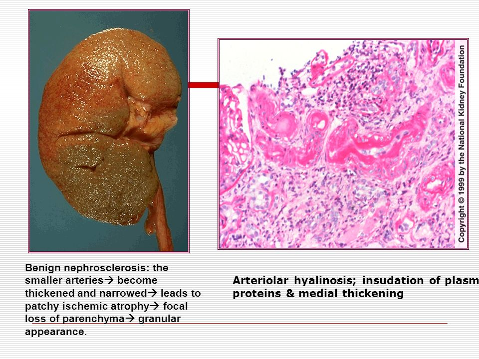 Arteriolar hyalinosis; insudation of plasma proteins & medial thickening Benign nephrosclerosis: the smaller arteries  become thickened and narrowed
