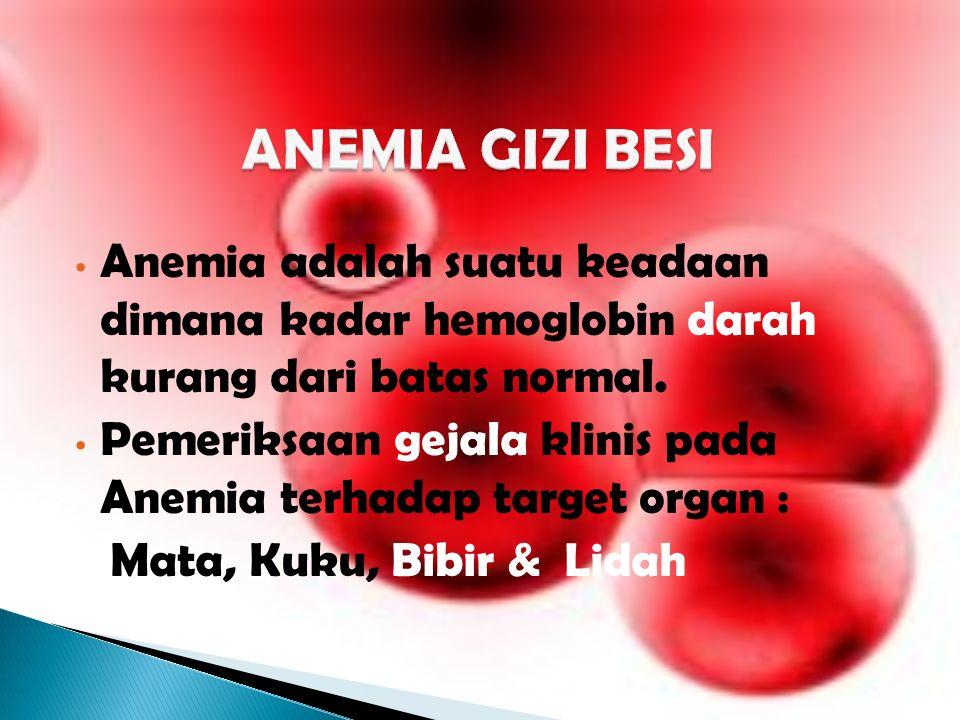 Anemia adalah suatu keadaan dimana kadar hemoglobin darah kurang dari batas normal.