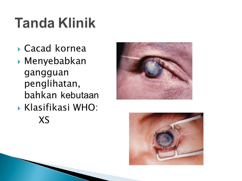  Cacad kornea  Menyebabkan gangguan penglihatan, bahkan kebutaan  Klasifikasi WHO: XS