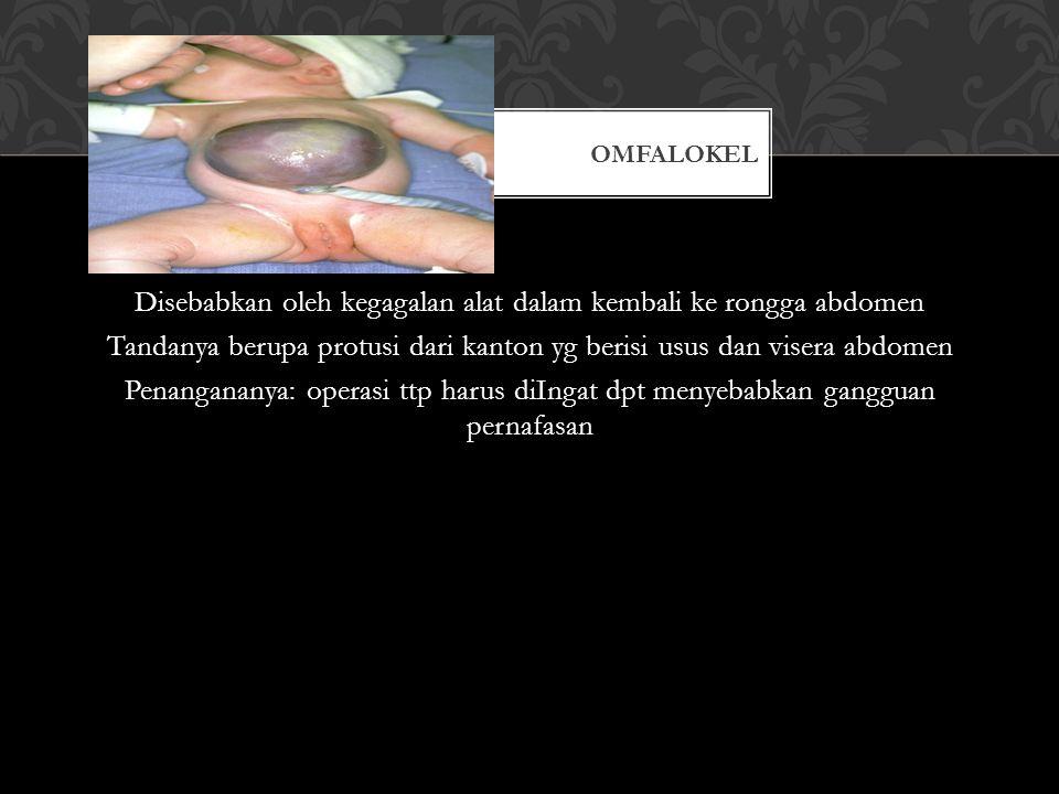 Disebabkan oleh kegagalan alat dalam kembali ke rongga abdomen Tandanya berupa protusi dari kanton yg berisi usus dan visera abdomen Penangananya: ope