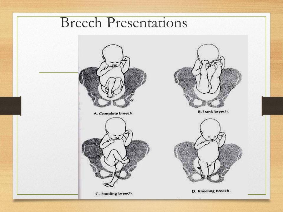 Breech Presentations