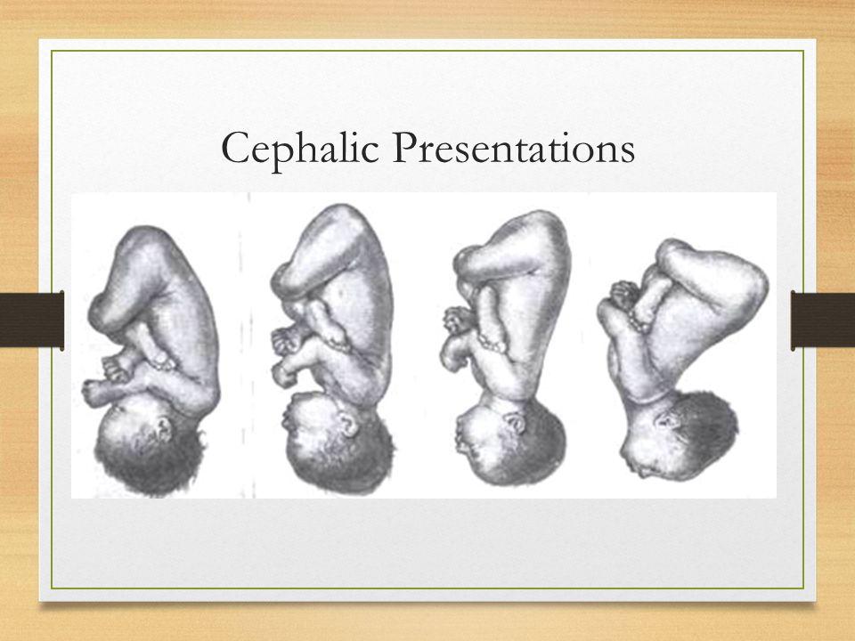 Cephalic Presentations