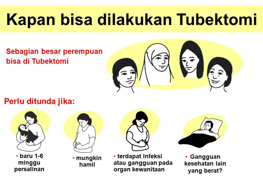 Kapan bisa dilakukan Tubektomi Perlu ditunda jika: Sebagian besar perempuan bisa di Tubektomi mungkin hamil baru 1-6 minggu persalinan terdapat Infeksi atau gangguan pada organ kewanitaan Gangguan kesehatan lain yang berat