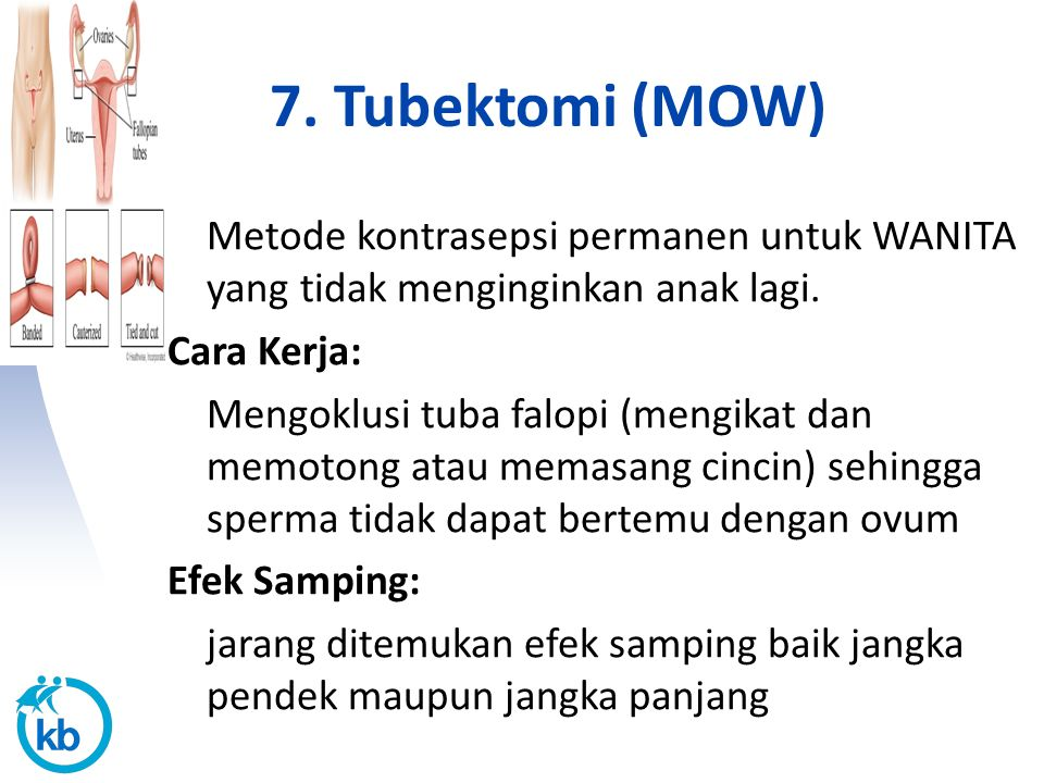 7. Tubektomi (MOW) Metode kontrasepsi permanen untuk WANITA yang tidak menginginkan anak lagi. Cara Kerja: Mengoklusi tuba falopi (mengikat dan memoto