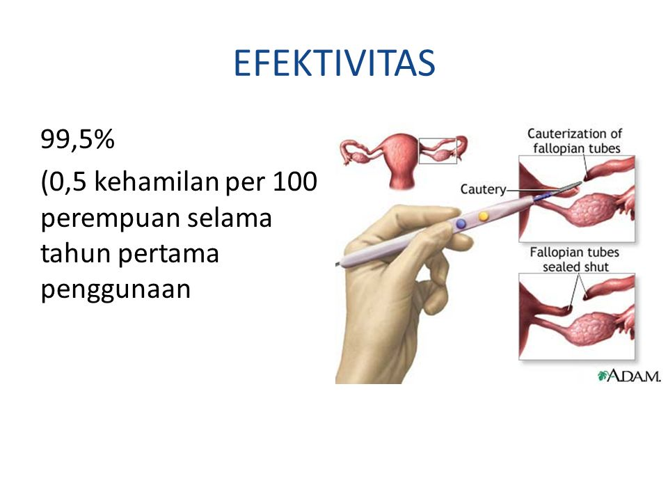 EFEKTIVITAS 99,5% (0,5 kehamilan per 100 perempuan selama tahun pertama penggunaan