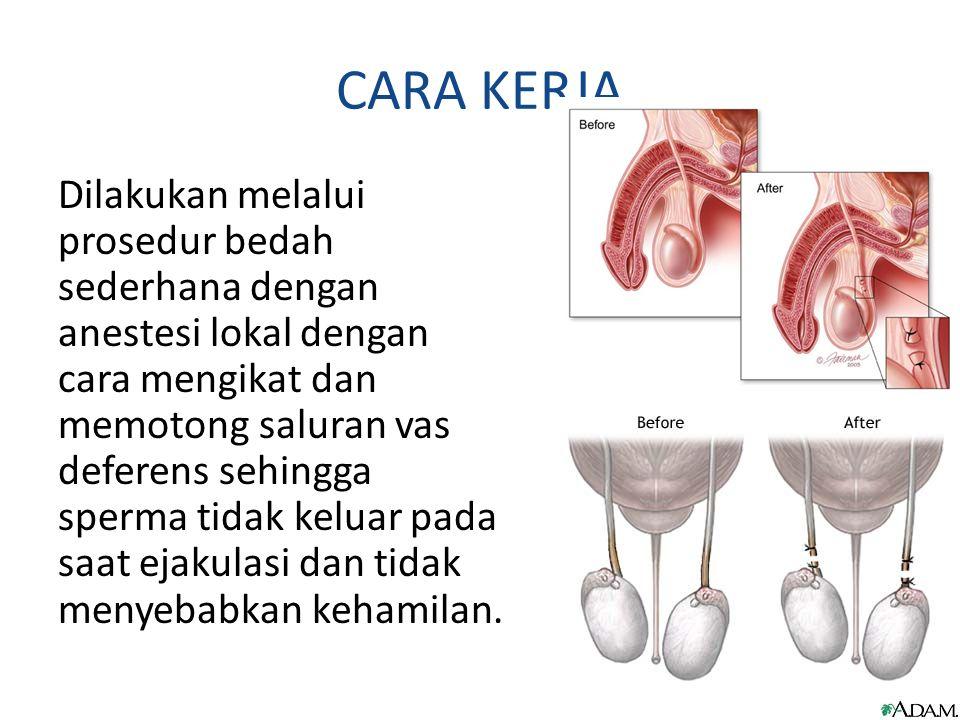 CARA KERJA Dilakukan melalui prosedur bedah sederhana dengan anestesi lokal dengan cara mengikat dan memotong saluran vas deferens sehingga sperma tid