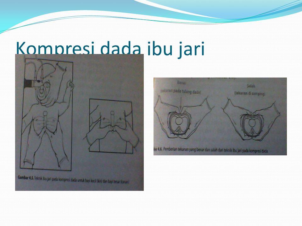 Kompresi dada ibu jari