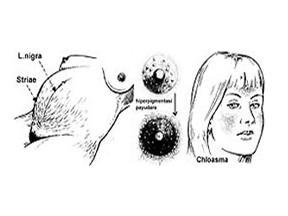 4.Strach Mark  Peregangan kulit yang berlebihan, biasanya pada paha atas, dan payudara.