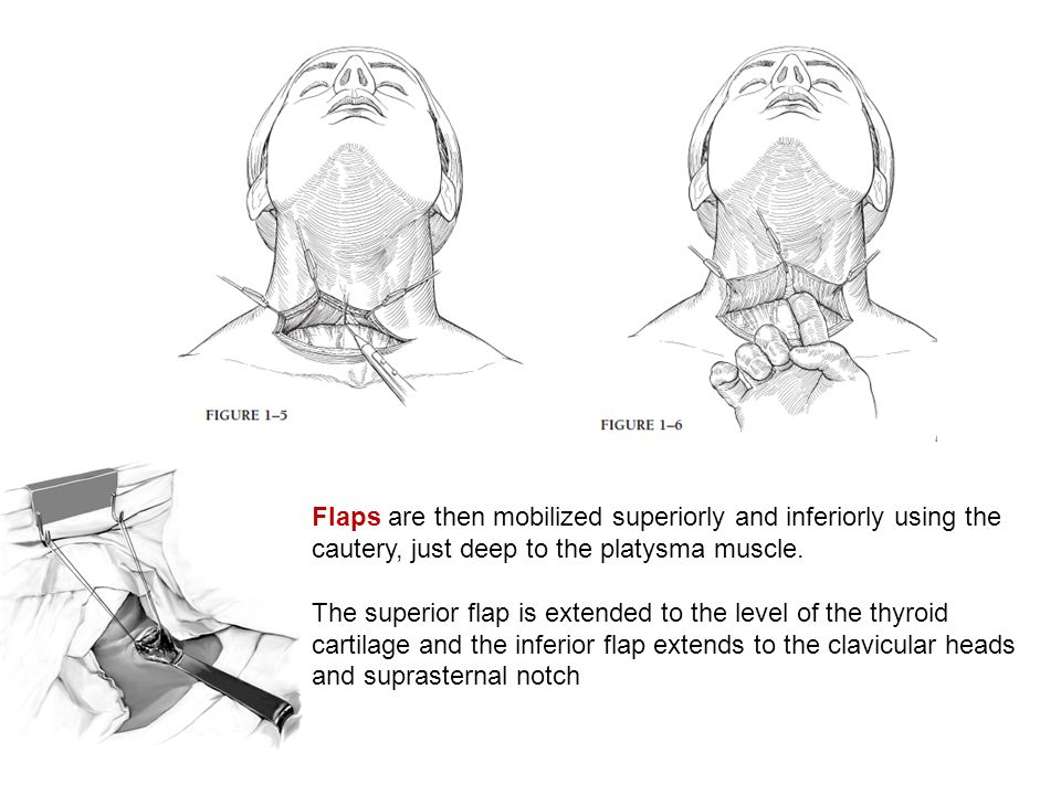 Flaps are then mobilized superiorly and inferiorly using the cautery, just deep to the platysma muscle.
