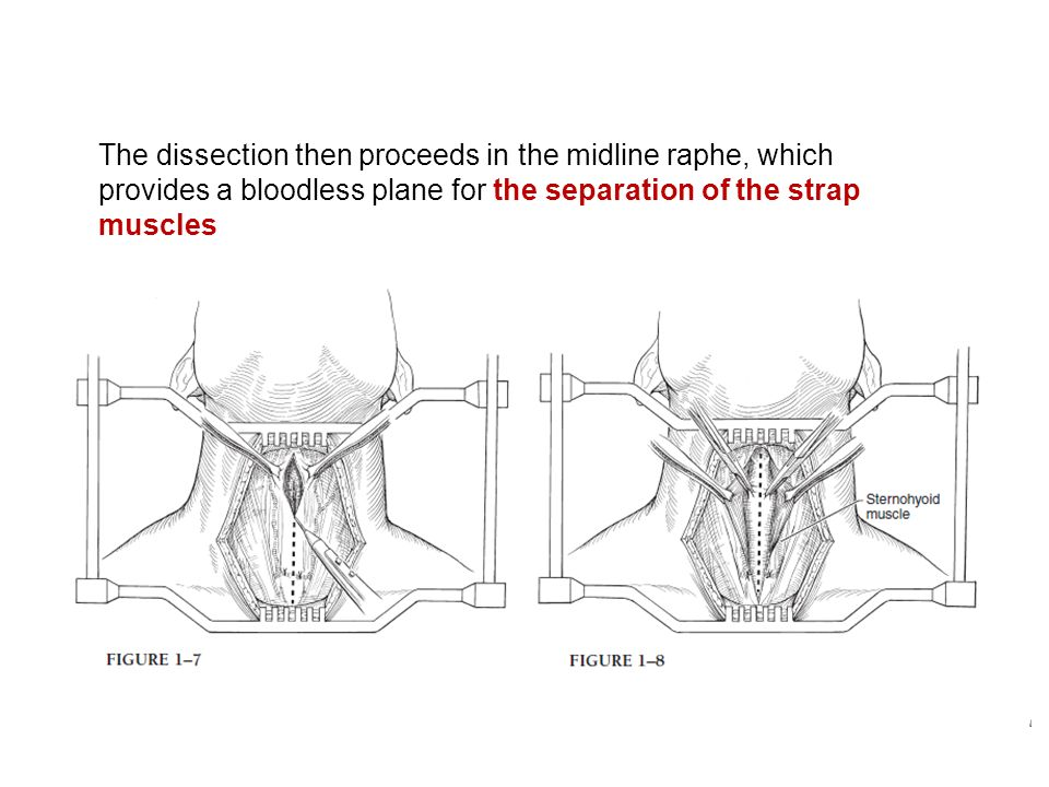 The dissection then proceeds in the midline raphe, which provides a bloodless plane for the separation of the strap muscles
