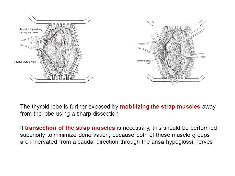 The thyroid lobe is further exposed by mobilizing the strap muscles away from the lobe using a sharp dissection If transection of the strap muscles is necessary, this should be performed superiorly to minimize denervation, because both of these muscle groups are innervated from a caudal direction through the ansa hypoglossi nerves