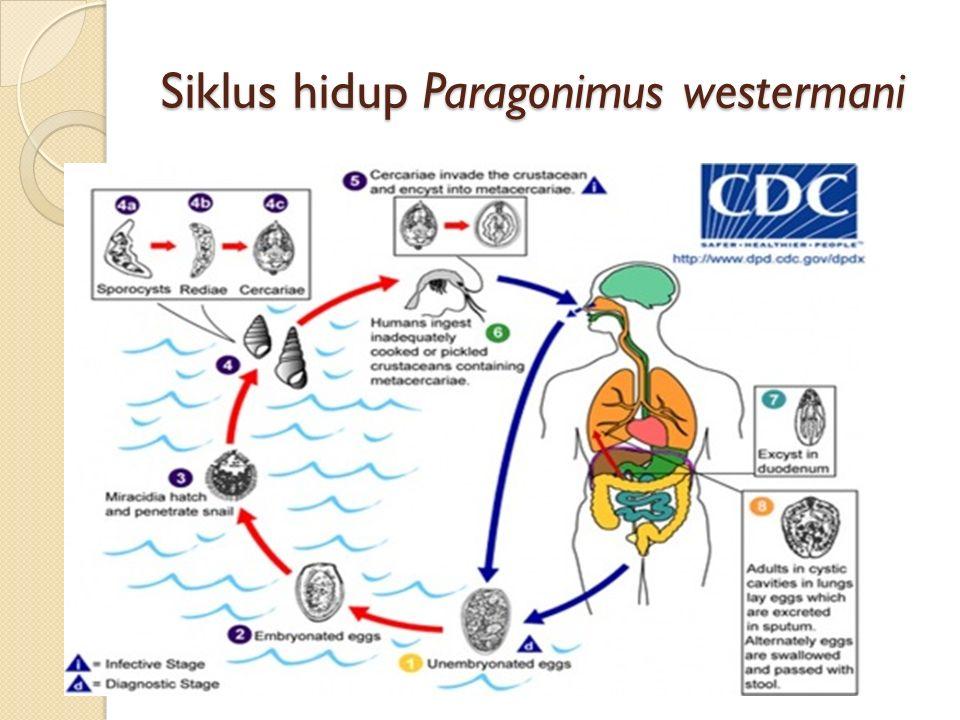 Siklus hidup Paragonimus westermani
