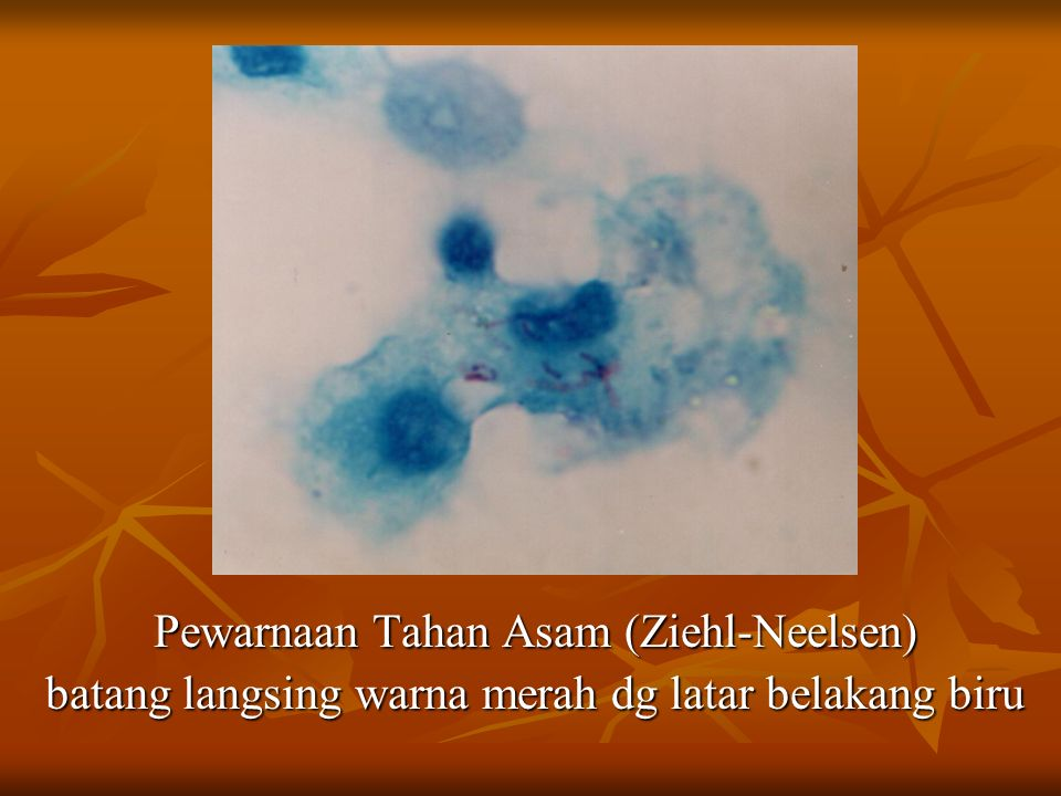 Pewarnaan Tahan Asam (Ziehl-Neelsen) batang langsing warna merah dg latar belakang biru