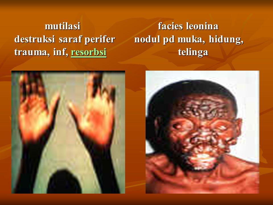 mutilasi facies leonina destruksi saraf perifer nodul pd muka, hidung, trauma, inf, resorbsi telinga mutilasi facies leonina destruksi saraf perifer nodul pd muka, hidung, trauma, inf, resorbsi telinga