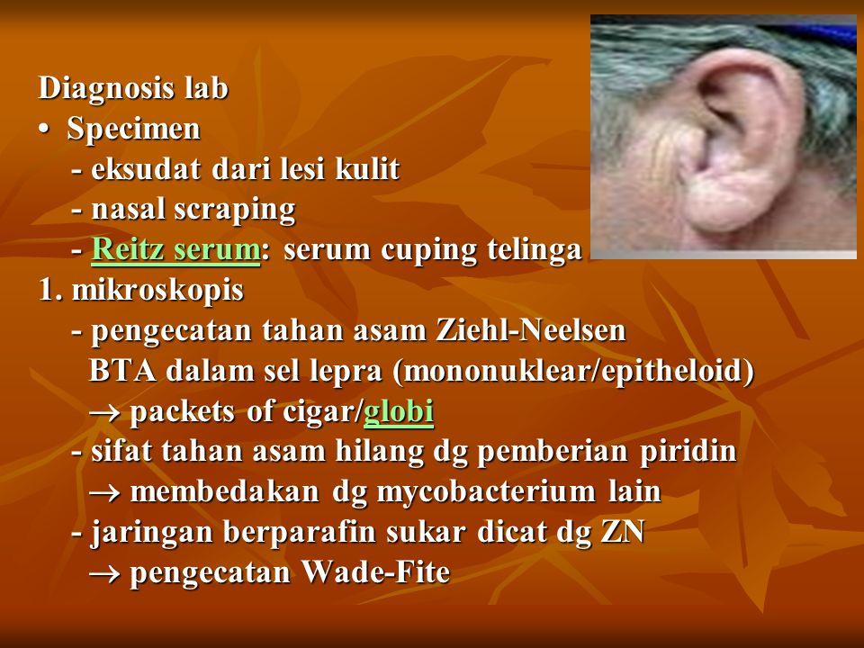 Diagnosis lab Specimen - eksudat dari lesi kulit - nasal scraping - Reitz serum: serum cuping telinga 1.