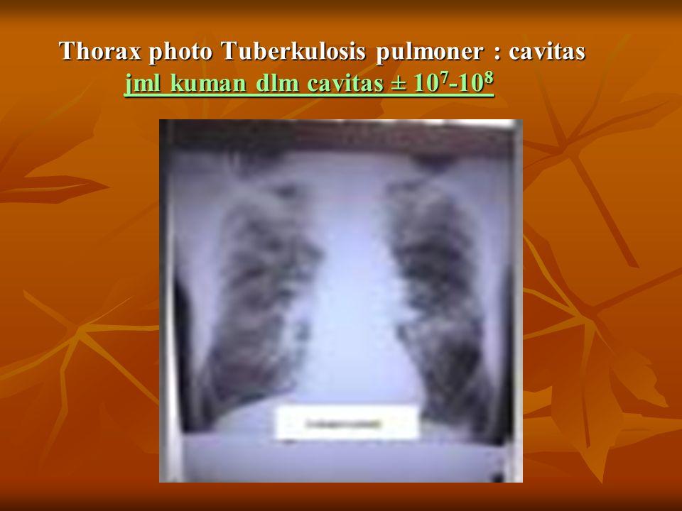 Thorax photo Tuberkulosis pulmoner : cavitas jml kuman dlm cavitas ± 10 7 -10 8