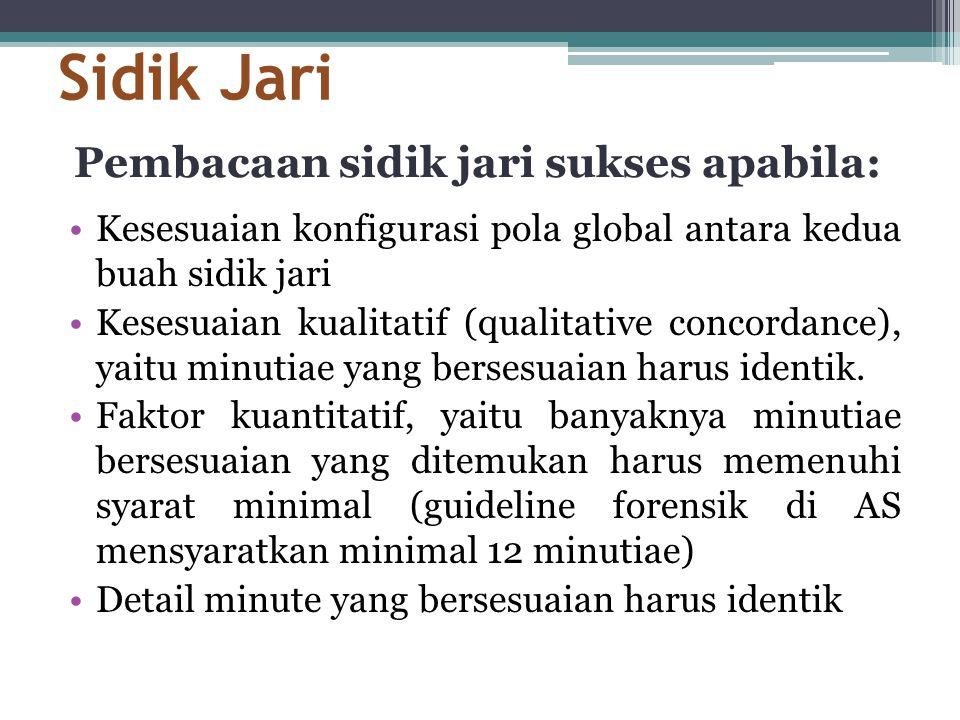 Sidik Jari •Kesesuaian konfigurasi pola global antara kedua buah sidik jari •Kesesuaian kualitatif (qualitative concordance), yaitu minutiae yang bers