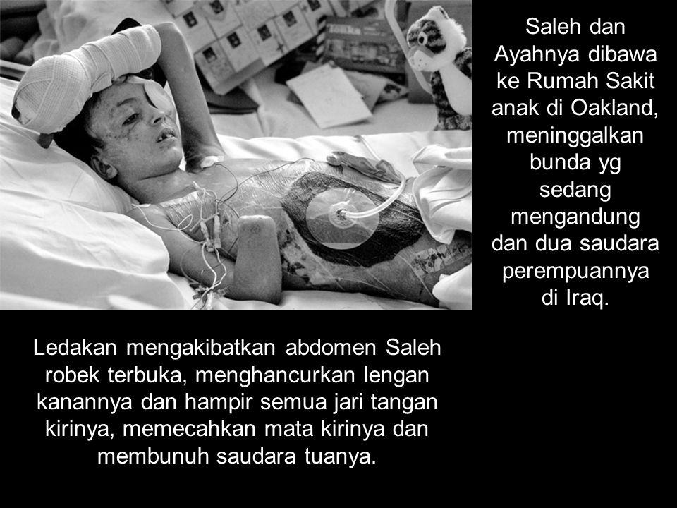 Saleh dan Ayahnya dibawa ke Rumah Sakit anak di Oakland, meninggalkan bunda yg sedang mengandung dan dua saudara perempuannya di Iraq. Ledakan mengaki