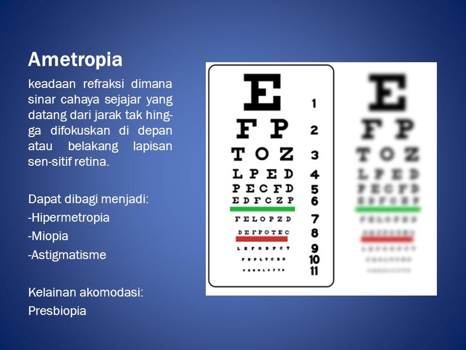 Ametropia keadaan refraksi dimana sinar cahaya sejajar yang datang dari jarak tak hing- ga difokuskan di depan atau belakang lapisan sen-sitif retina.