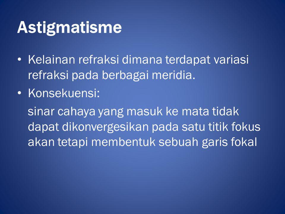 Astigmatisme • Kelainan refraksi dimana terdapat variasi refraksi pada berbagai meridia. • Konsekuensi: sinar cahaya yang masuk ke mata tidak dapat di