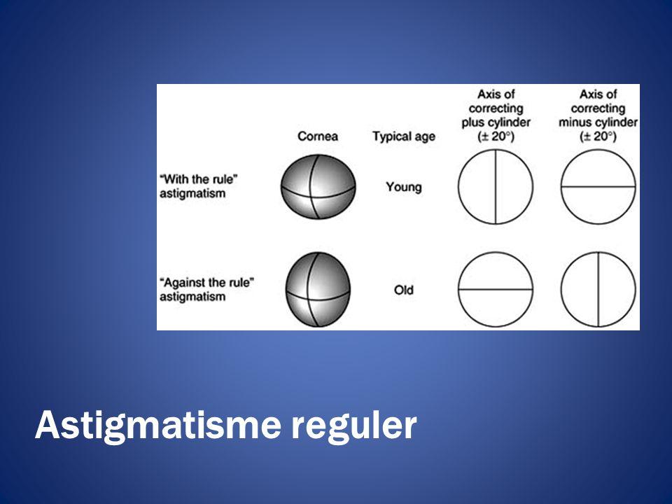 Astigmatisme reguler