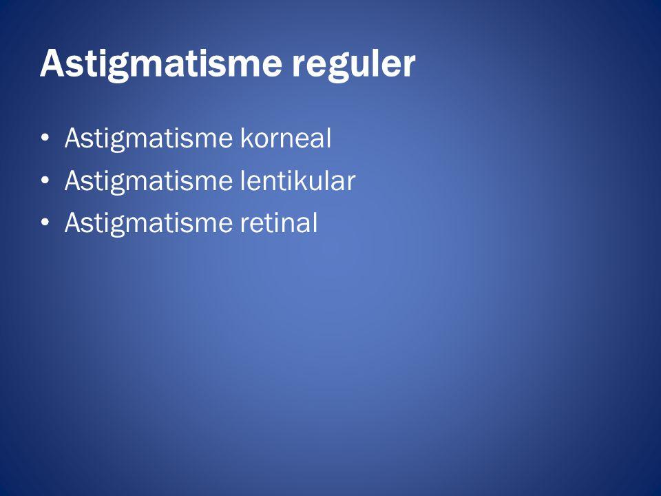 • Astigmatisme korneal • Astigmatisme lentikular • Astigmatisme retinal