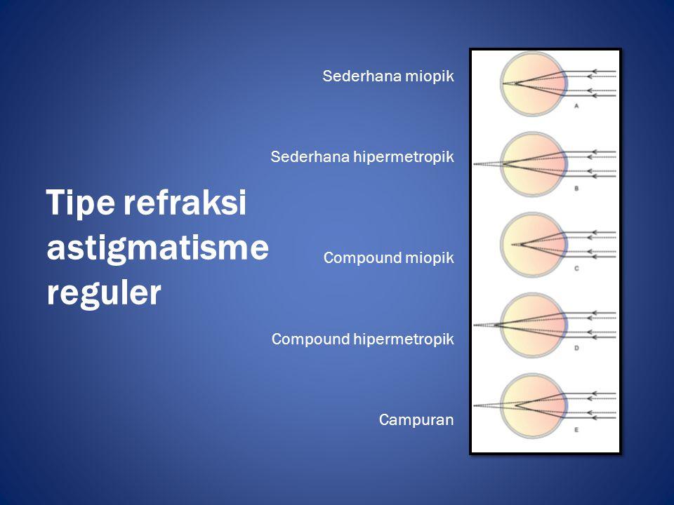 Astigmatisme ireguler • Astigmatisme jenis ini memiliki karakteristik perubahan ireguler kekuatan refraktif pada meridia berbeda • Secara etiologis dibedakan menjadi – astigmatisme ireguler kurvatural – Astigmatisme ireguler indeks