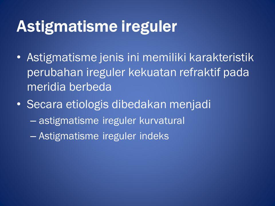 Astigmatisme ireguler • Astigmatisme jenis ini memiliki karakteristik perubahan ireguler kekuatan refraktif pada meridia berbeda • Secara etiologis di