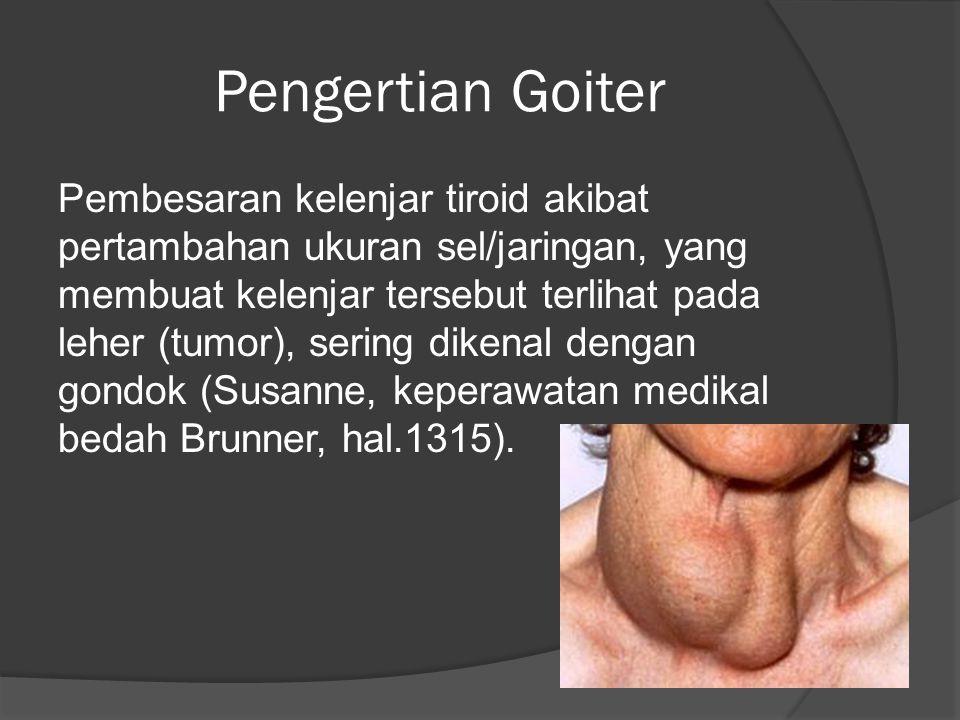 Pengertian Goiter Pembesaran kelenjar tiroid akibat pertambahan ukuran sel/jaringan, yang membuat kelenjar tersebut terlihat pada leher (tumor), sering dikenal dengan gondok (Susanne, keperawatan medikal bedah Brunner, hal.1315).