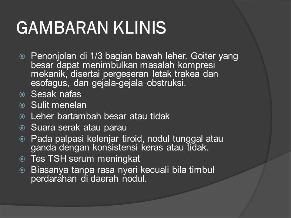 GAMBARAN KLINIS  Penonjolan di 1/3 bagian bawah leher.