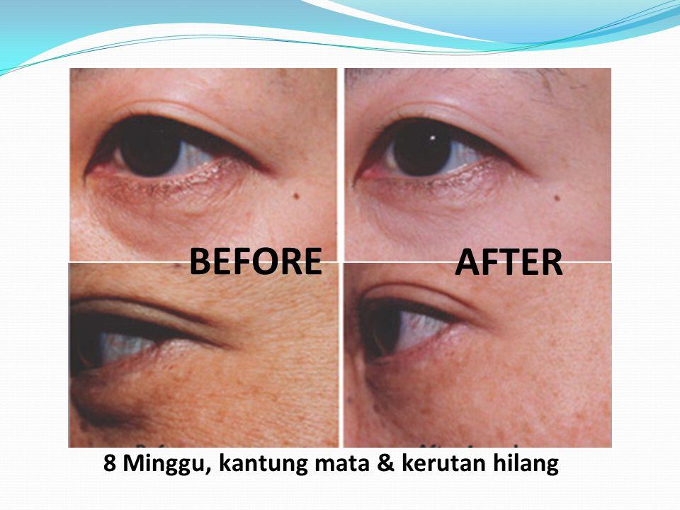 Anti Peradangan Satu-satunya Antioksidant Yang mampu membersihkan Radikal bebas di otak Manfaat untuk mata • Glaucoma • Katarak • Akomodasi Mata • Sumbatan pembuluh darah mata • Diabetic retinopathy • Age-related macular degeneration • dll