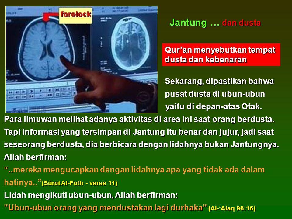 Sekarang, dipastikan bahwa Sekarang, dipastikan bahwa pusat dusta di ubun-ubun yaitu di depan-atas Otak.