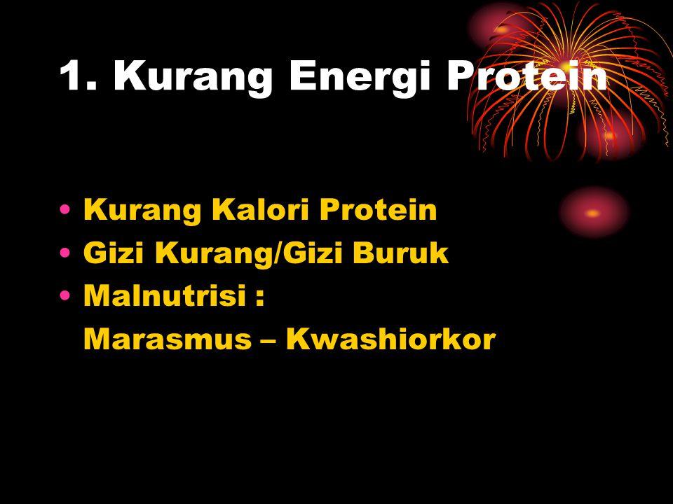 1. Kurang Energi Protein •Kurang Kalori Protein •Gizi Kurang/Gizi Buruk •Malnutrisi : Marasmus – Kwashiorkor