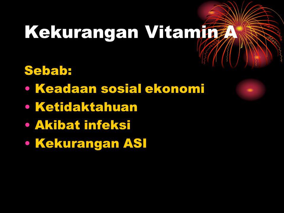 Kekurangan Vitamin A Sebab: •Keadaan sosial ekonomi •Ketidaktahuan •Akibat infeksi •Kekurangan ASI