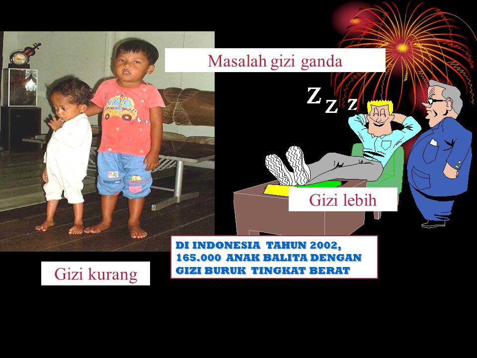 Gizi kurang Gizi lebih Masalah gizi ganda DI INDONESIA TAHUN 2002, 165.000 ANAK BALITA DENGAN GIZI BURUK TINGKAT BERAT