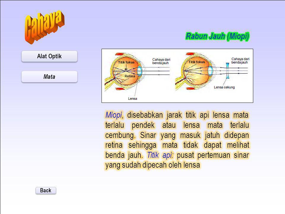 Back Rabun Jauh (Miopi) (Klik) Rabun Dekat (Hipermetropi) (Klik) Alat Optik Mata Penelusuran Lanjut Tujuan Pembelajaran: Siswa dapat menjelaskan macam